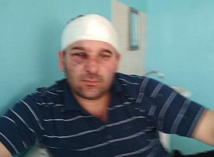 Житель обвинил главу сельской администрации в вооруженном нападении под Волгоградом