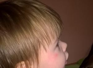 Двухлетнюю девочку избила воспитатель в детском саду №135 Волгограда