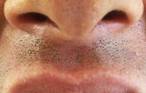 Волгоградец с «акульей челюстью» шокировал Интернет