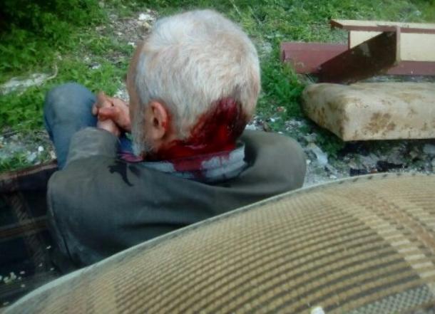 ВВолгограде школьник разбил камнем голову бездомному накостылях