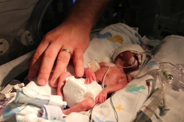 Малышка весом 850 грамм родилась у волгоградки с редкой болезнью Такаясу