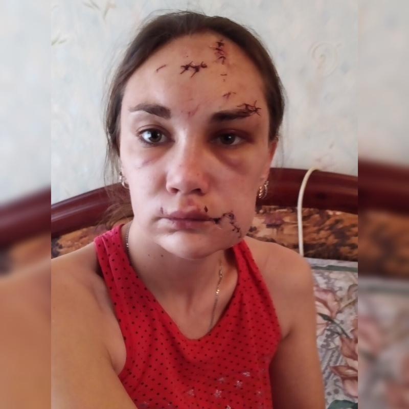 Прохор Шаляпин поддержал жительницу Урюпинска, которой экс-супруг порезал лицо