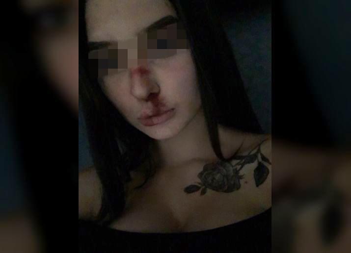 Разбитый парнем за измену нос юной красавицы вызвал бурю обсуждений волгоградцев
