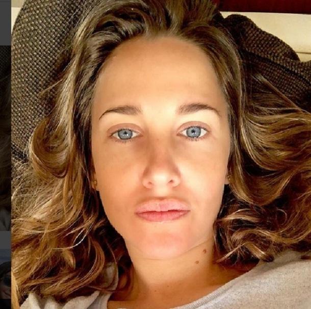 Юлию Ковальчук обвинили в том, что она накачала губы