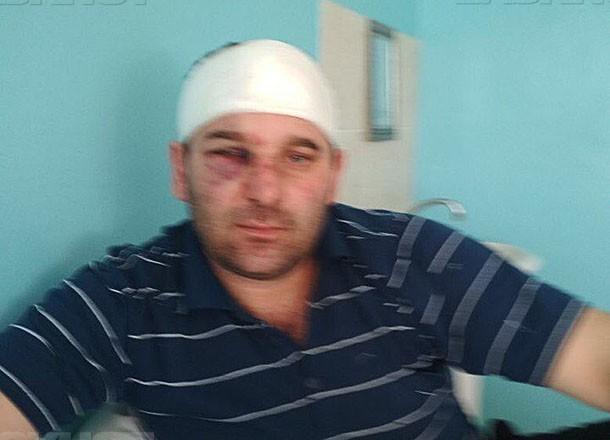 У главы села Дубовского района забрали ружье после жестокого избиения мужчины
